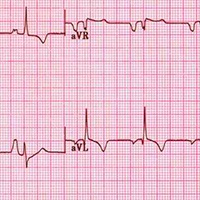 Electrocardiograms Show Value in College Athletes' Screens