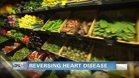 Nearly Half of US Adults Have Cardiovascular Disease