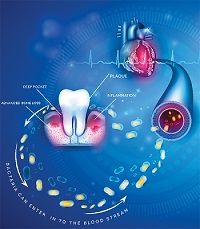 The Heart—Dental Health Relationship