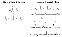 Did Your Heart Skip A Beat? All About Arrhythmias
