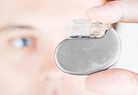 More Than Fancy Pacemakers: How ICDs Help You